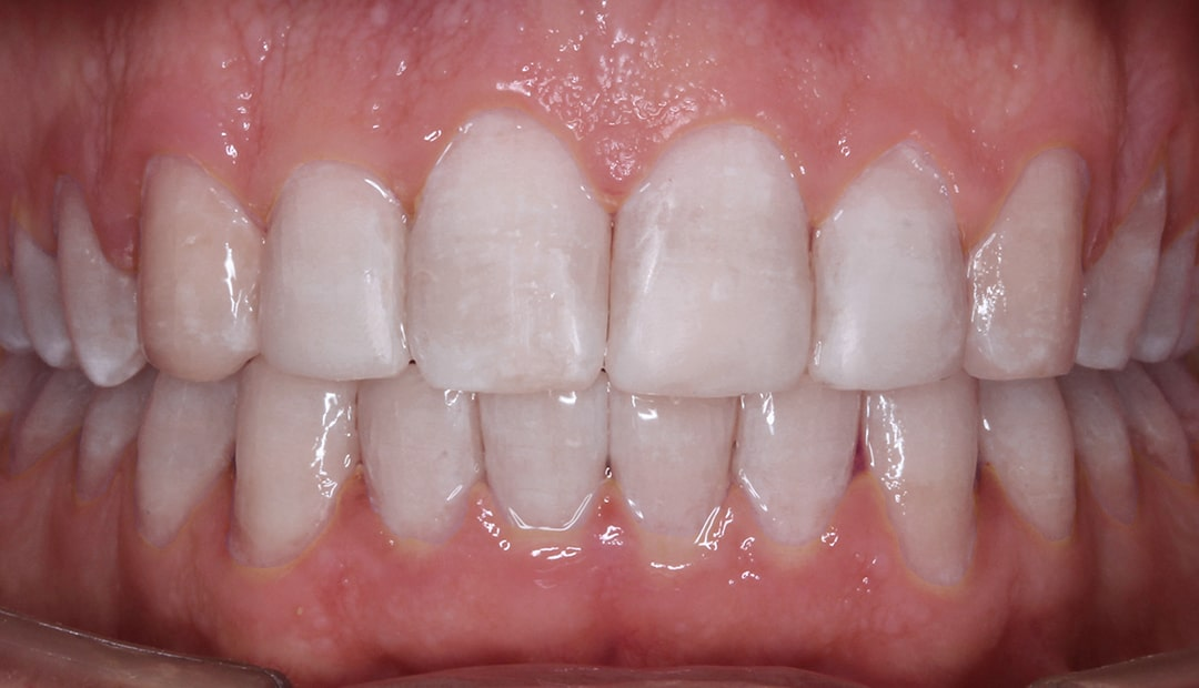 Invisalign transformations