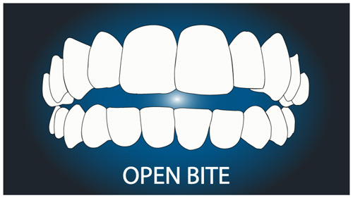 Invisalign can treat a huge range of straightening requirements