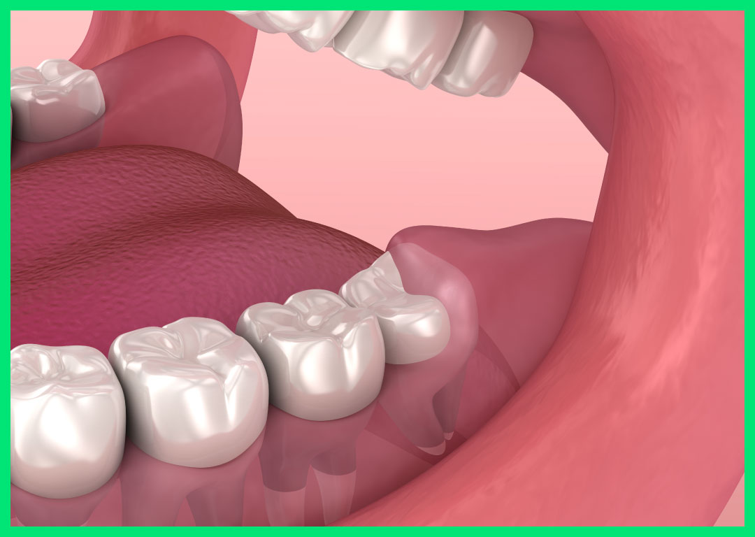 Wisdom Tooth Extraction A Better Smile Dental Centre