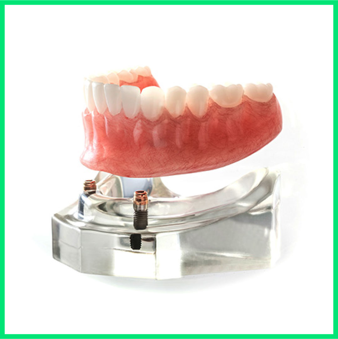 Dental mini implants